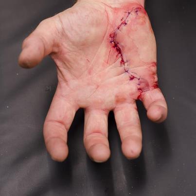 neils-cut-hand.jpg%3Fw%3D403
